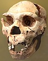 A skull with jaw missing its lower incisors and canines, and all of its upper teeth except for one incisor and its molars, and a broken right brow ridge